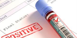 FSC HIV